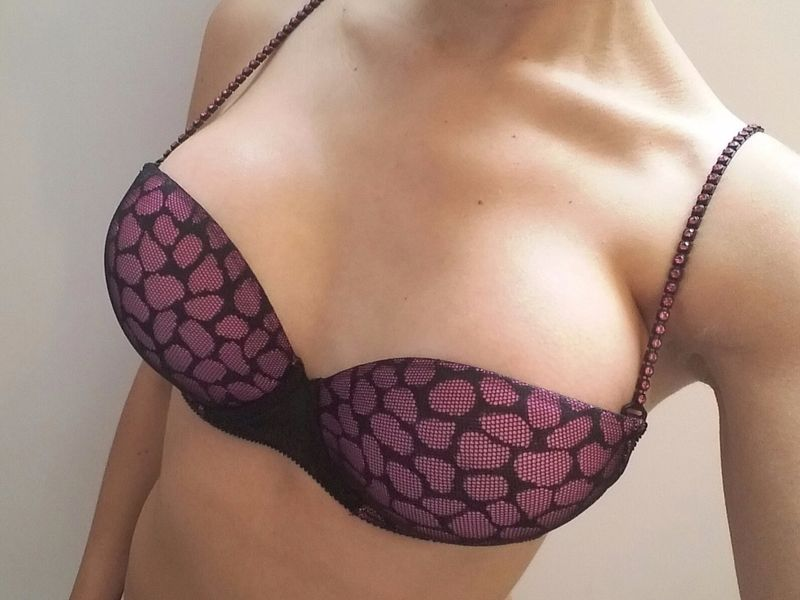 Resultados mamoplastia de aumento